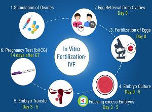 IVF-Steps